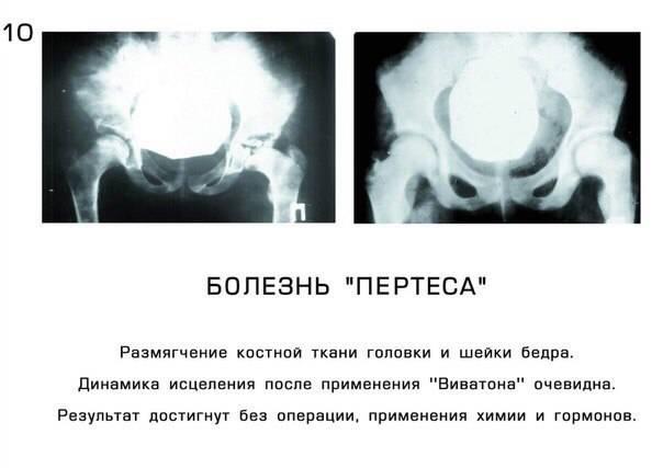 Заболевания опорно-двигательного аппарата у собак: причины и лечение