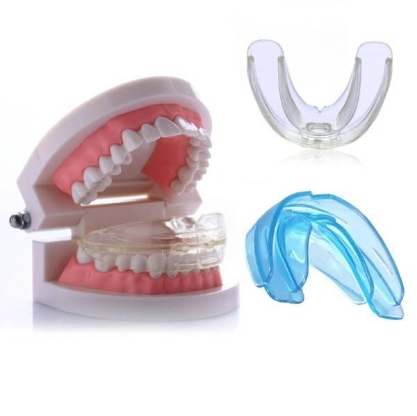 Съемные ортодонтические аппараты: исправление прикуса капами и трейнерами