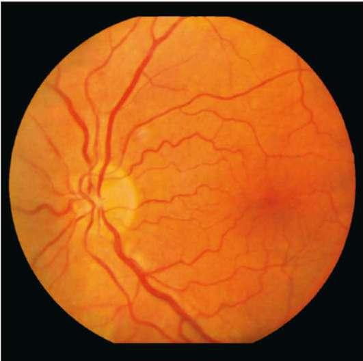 Проблемы с глазами у малышей — это очень серьёзно! что такое ангиопатия сетчатки у грудничка