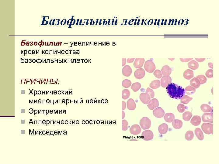 Лейкоцитоз - признаки, причины, симптомы, лечение и профилактика - idoctor.kz