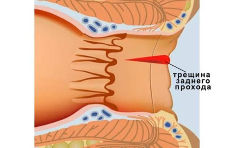 Острый тромбоз наружных геморроидальных узлов