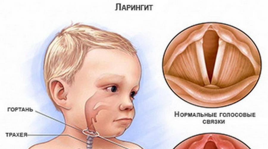 Острый, хронический и вирусный трахеит: заразен ли, сколько длится