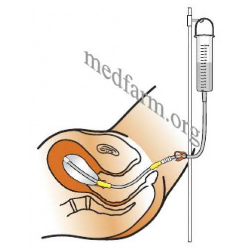 Сгустки крови при катетере фолея для раскрытия шейки матки