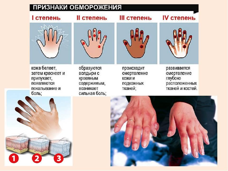 Первая помощь при обморожении - причины, диагностика и лечение