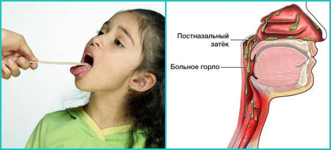 Выделения из носа, глаз, горла: причины, симптомы   компетентно о здоровье на ilive