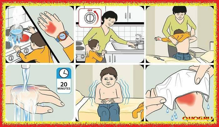У ребенка ожог: что нужно и чего нельзя делать