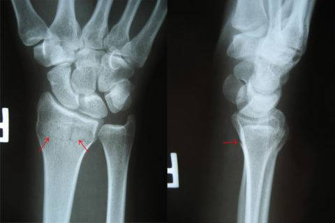 Осложнения при лечении переломов