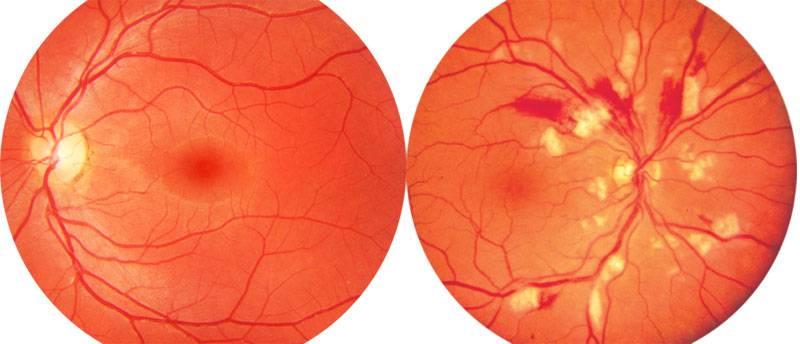 Ангиопатия сетчатки глаза: диагностика и лечение | клиника санта