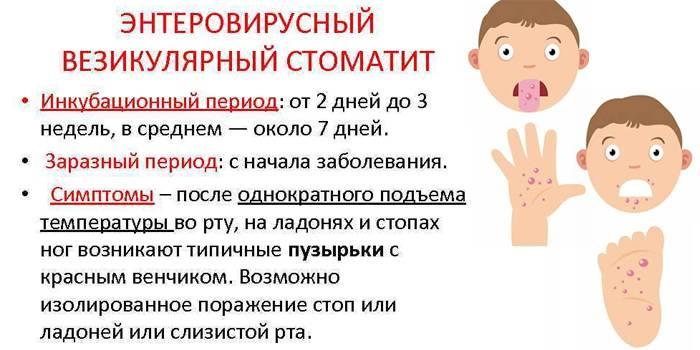 Лечение энтеровирусной инфекции