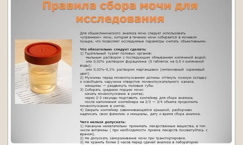Бактериологический анализ мочи: посев мочи на микрофлору