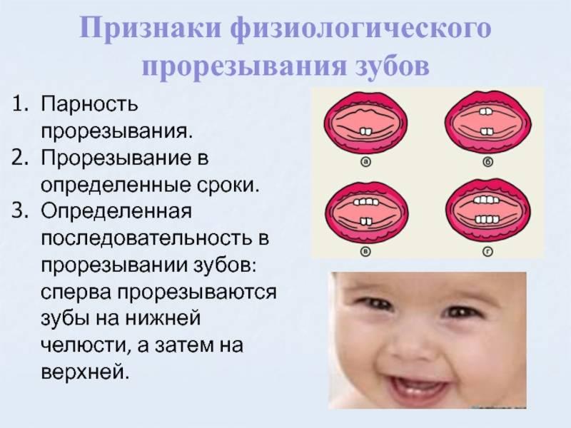 Задержка прорезывания молочных зубов: почему и когда должны прорезаться зубы