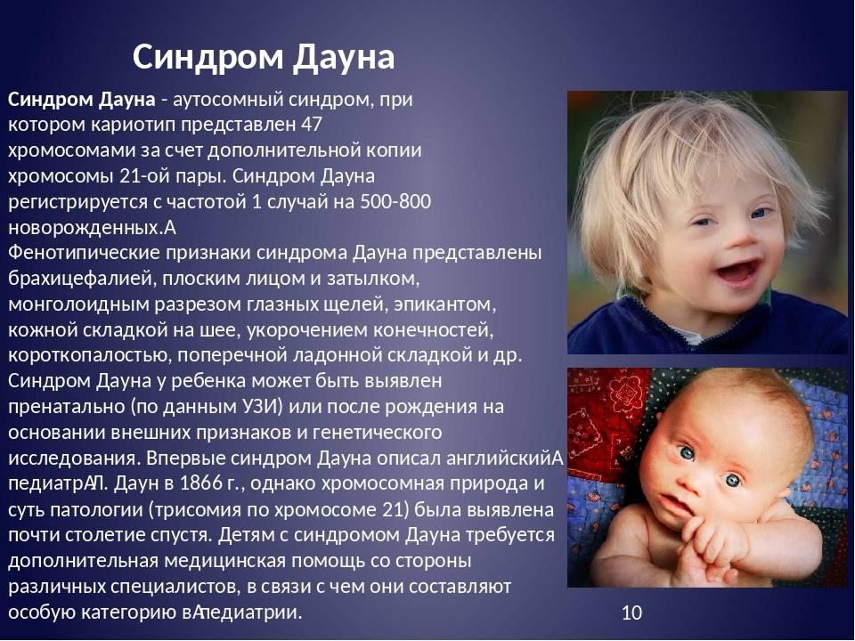 Синдром дауна - признаки, причины, симптомы, лечение и профилактика - idoctor.kz