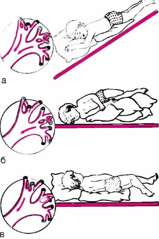 Как делать дренажный массаж для отхождения мокроты при кашле у грудного ребенка