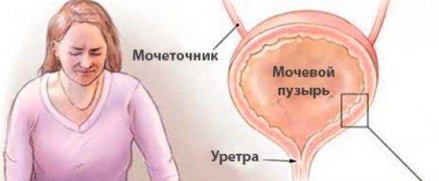Симптомы и причины интерстициального цистита | боль в мочевом пузыре