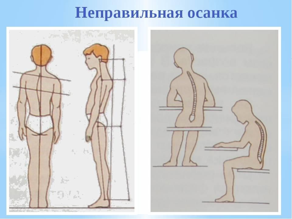 Нарушение осанки у детей, лечение, виды, профилактика дошкольного возраста и подростков в москве