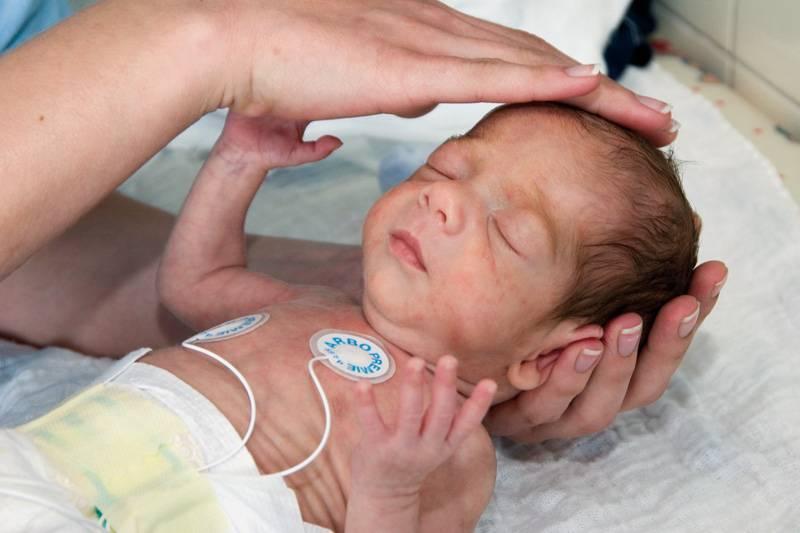 Гипоксия у новорожденных и детей старшего возраста | доктор квант