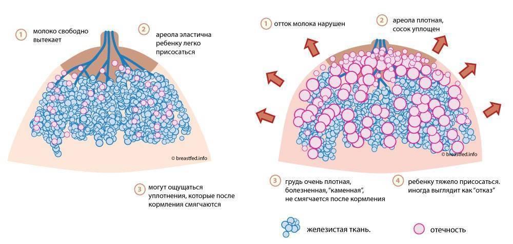 Секторальная резекция грудной железы - хирургическое лечение опухолей молочной железы