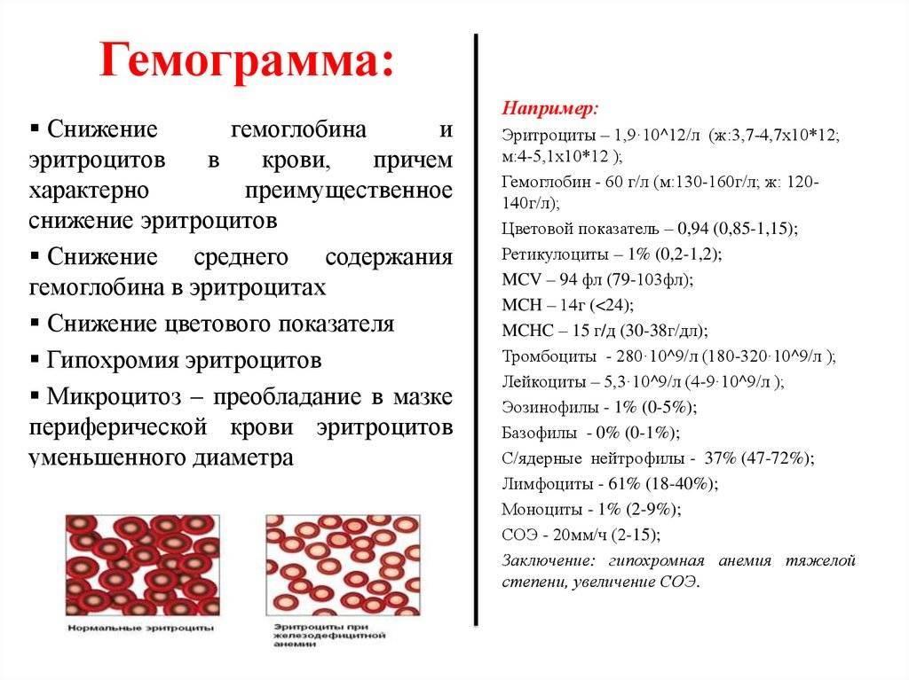 На что указывает высокий холестерин в крови