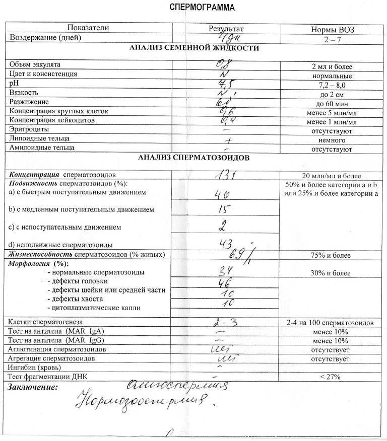 Днк-фрагментация сперматозоидов и невынашивание беременности   «уро-про» екатеринбург