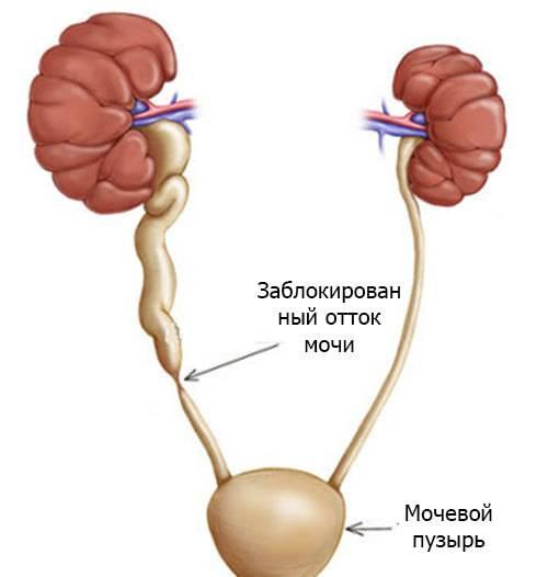 Нефроптоз (опущение почки)