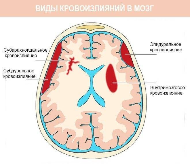 Кровоизлияние в мозг у новорожденных: последствия внутрижелудочковой патологии, симптомы, лечение