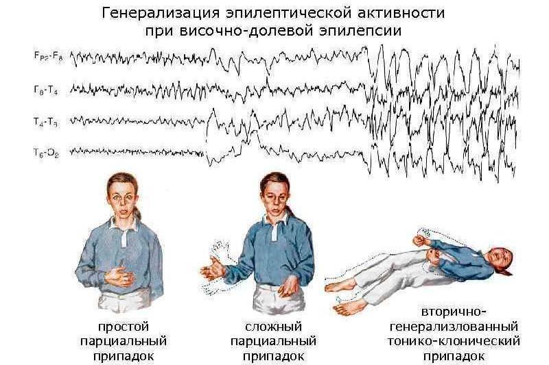 Ювенильная абсансная эпилепсия: признаки, лечение — онлайн-диагностика