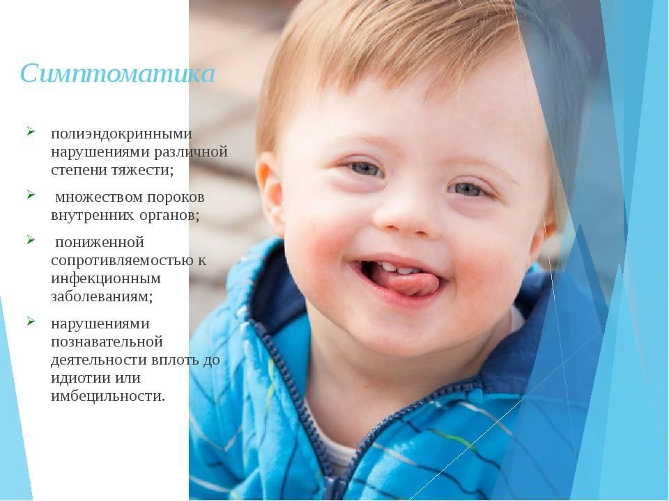 Синдром дауна у детей: симптомы, причины, лечение