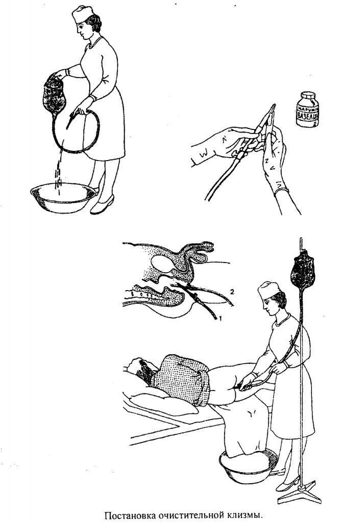 Подготовка к колоноскопии клизмой - если процедура утром и при помощи касторки