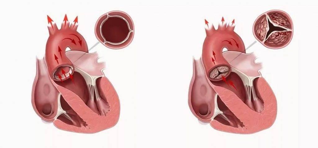 Врожденные пороки сердца у детей - причины заболевания и первые симптомы, профилактика и лечение болезни