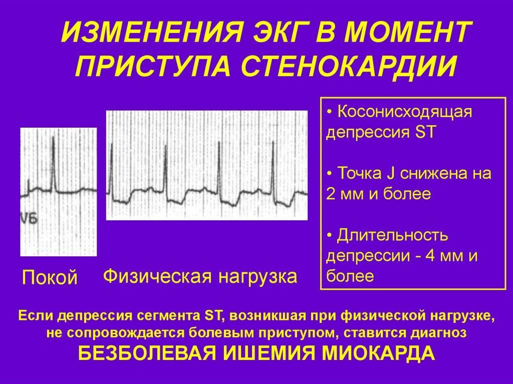 Холтеровское мониторирование экг (холтер-мониторинг). расшифровка холтера