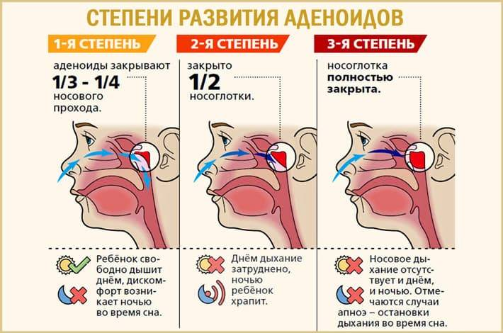 Лечение флюса, его симптомы, причины и отзывы   народные средства лечения флюса