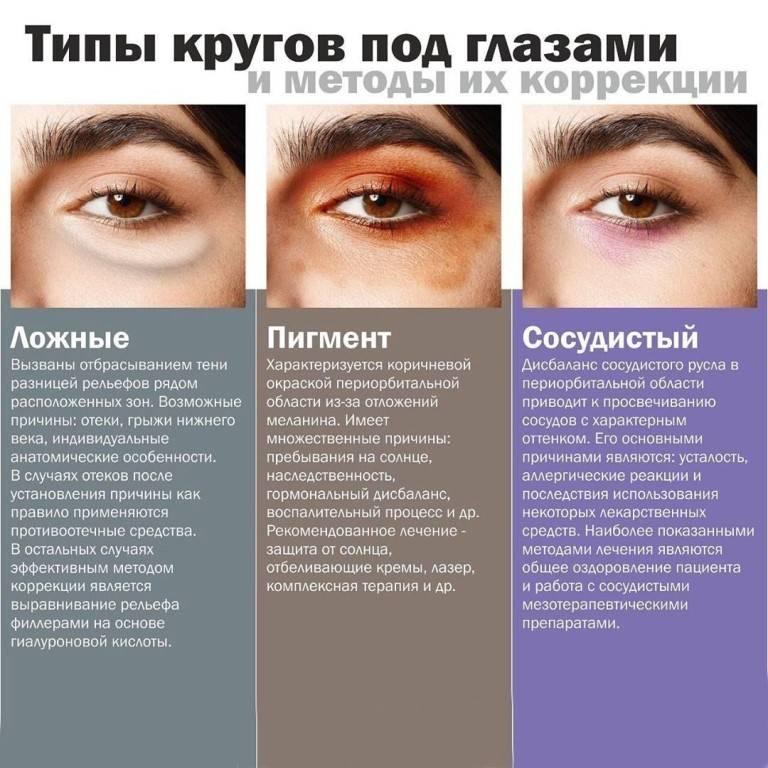 Синие круги под глазами - энциклопедия ochkov.net