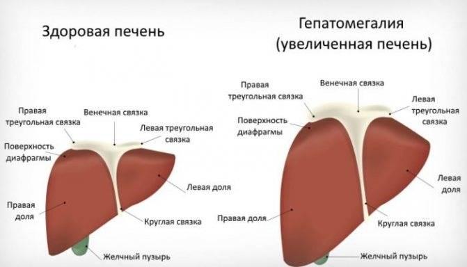 Умеренная гепатомегалия - признаки, причины, симптомы, лечение и профилактика - idoctor.kz