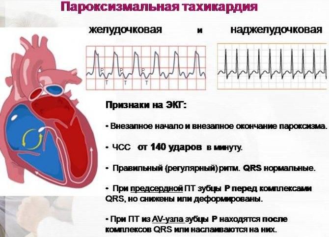 Нарушение ритма сердца, причины и лечение нарушения ритма сердца с диагностикой в центре