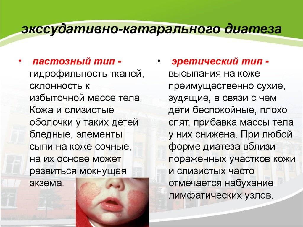 Лечение экссудативного диатеза