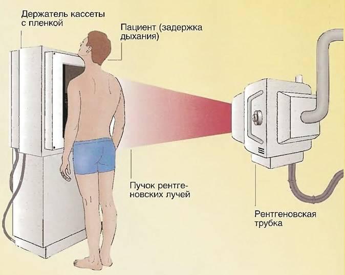 Рентген грудной клетки!
