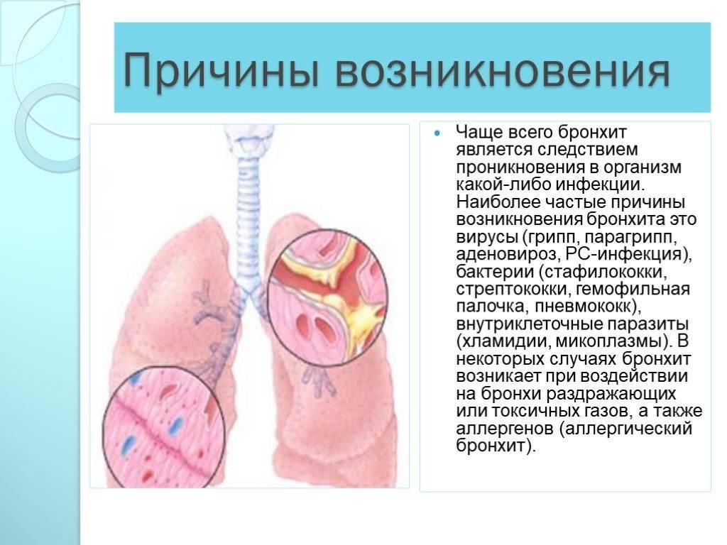 Трахеит. лечение трахеита
