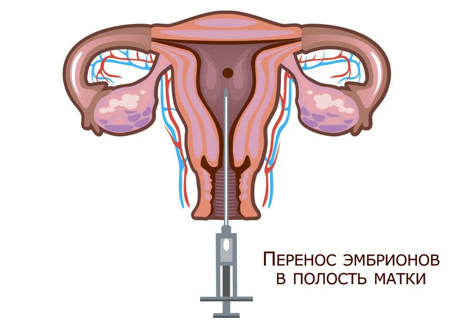 Дюфастон: инструкция по применению, перед эко и после переноса эмбрионов