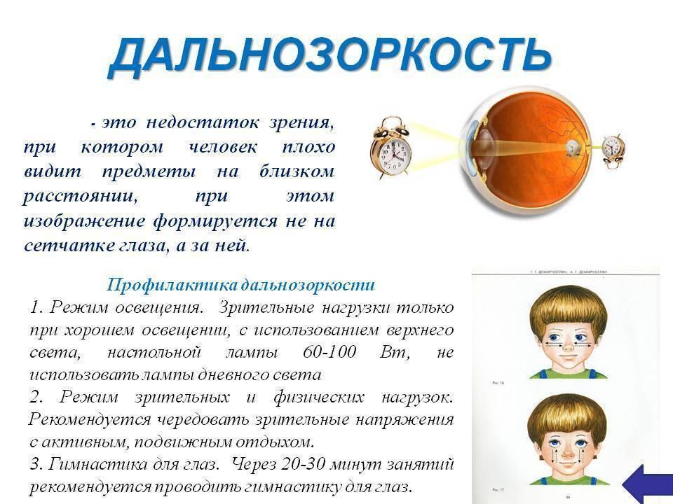 Упражнения для лечения близорукости у детей - энциклопедия ochkov.net