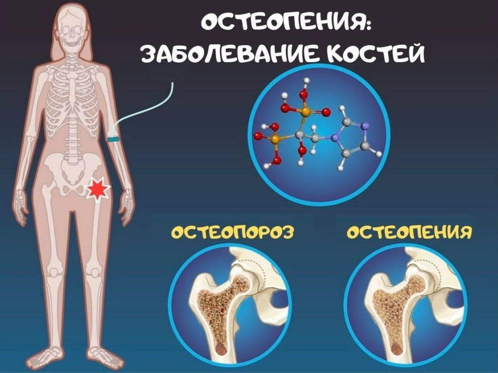 Остеопороз - причины, симптомы и диагностика в патеро клиник