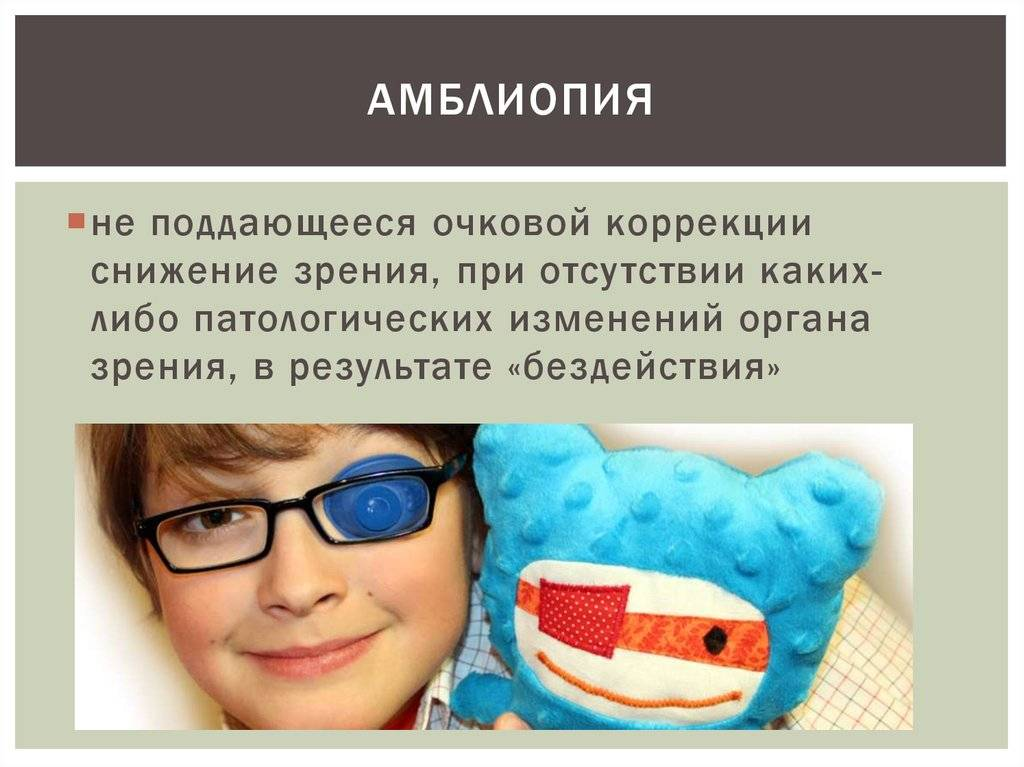 Амблиопия: виды, симптомы, лечение «ochkov.net»