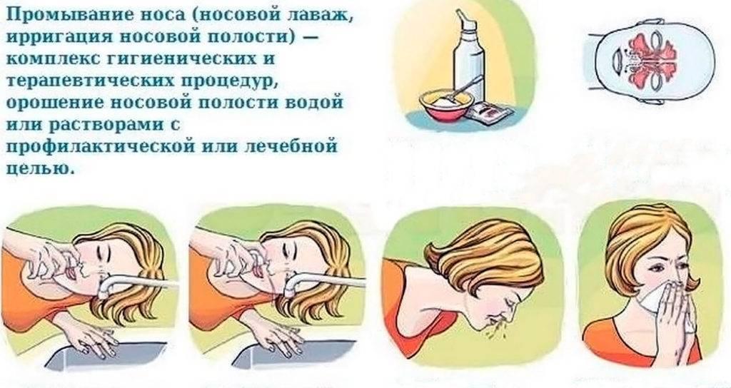 Как промыть нос грудному ребенку в домашних условиях