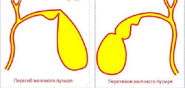 Перегиб желчного пузыря у ребенка. советы доктора комаровского