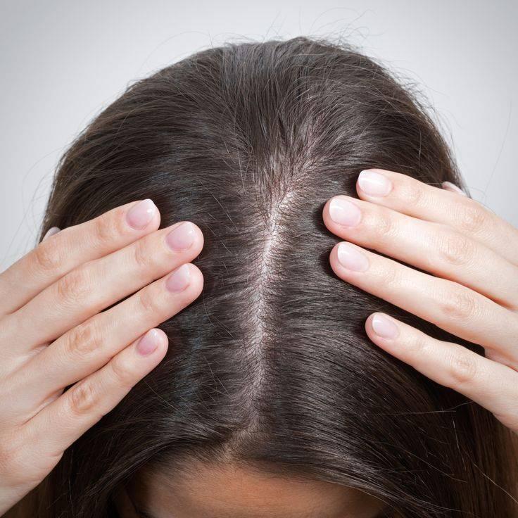 Сухость кожи головы   компетентно о здоровье на ilive