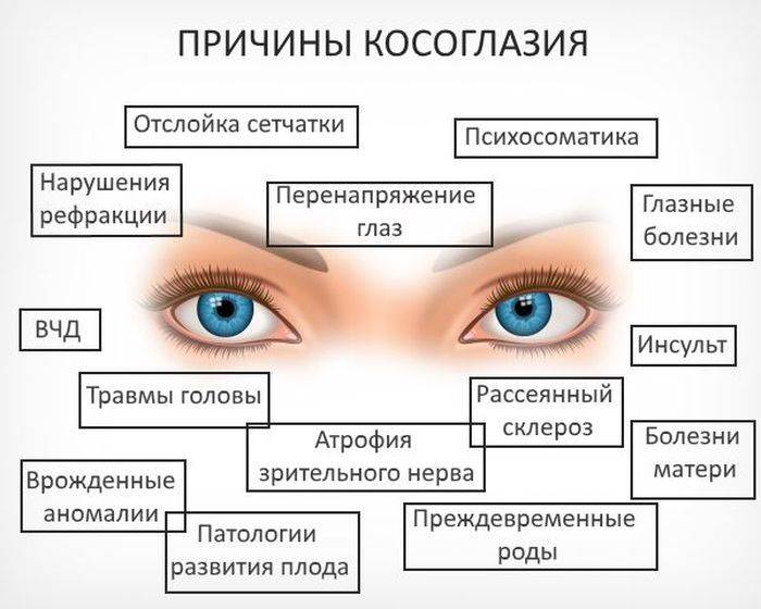 Зрение у новорожденных «ochkov.net»