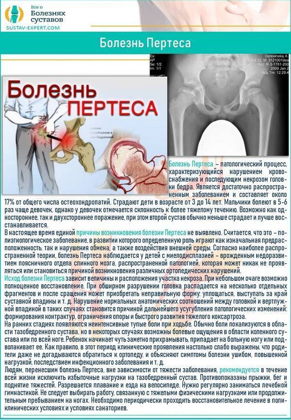 Остеопения - лечение, симптомы, причины, диагностика | центр дикуля