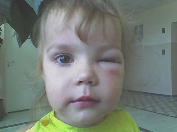 Насколько опасна аллергия на укус комара?