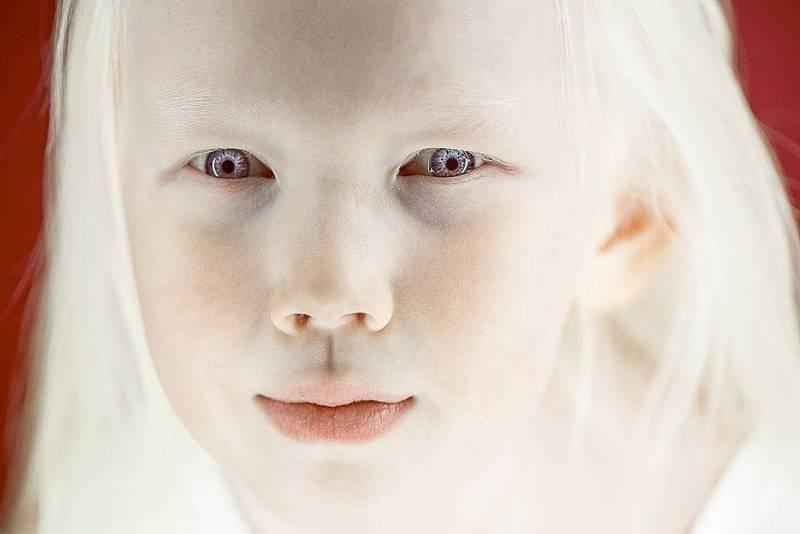 24 факта, которые вы не знали об альбинизме :: инфониак