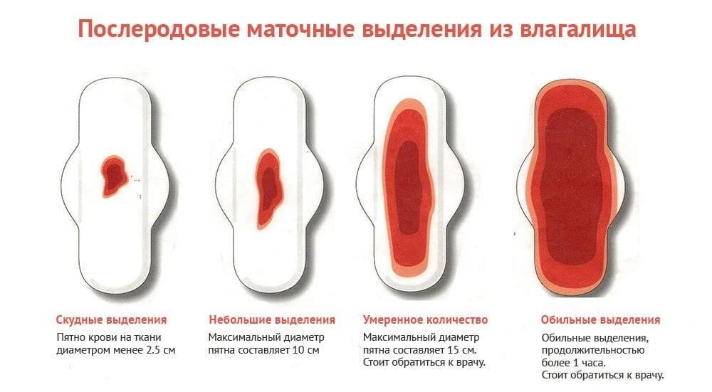 О чем говорит цвет менструаций