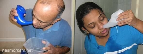 Промывание носа — способы и средства для промывания носа